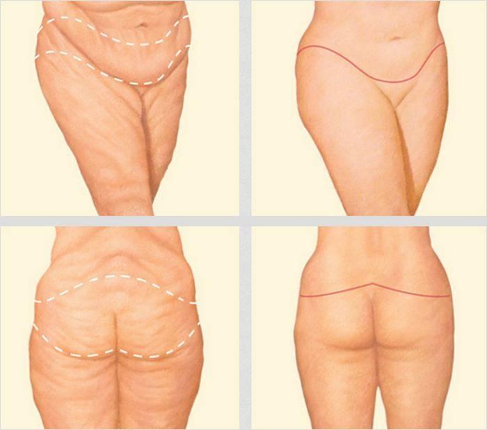 Торсопластика — эффективный метод коррекции фигуры