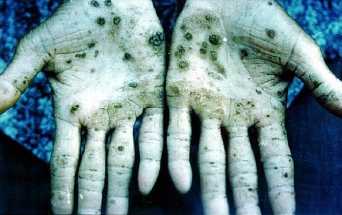 Отравление мышьяком симптомы у человека лечение