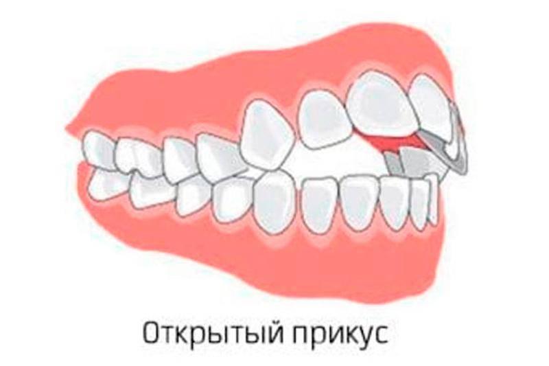 Ортодонтия: ответы на часто задаваемые вопросы