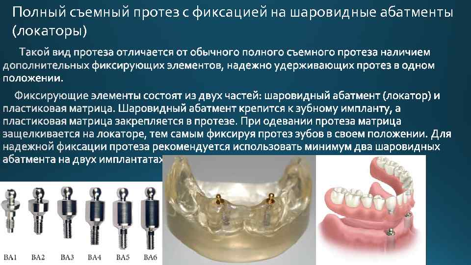 Несъемные зубные протезы: современные виды и конструкции