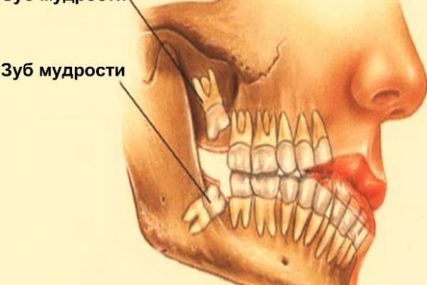 Болят передние нижние зубы: 7 причин