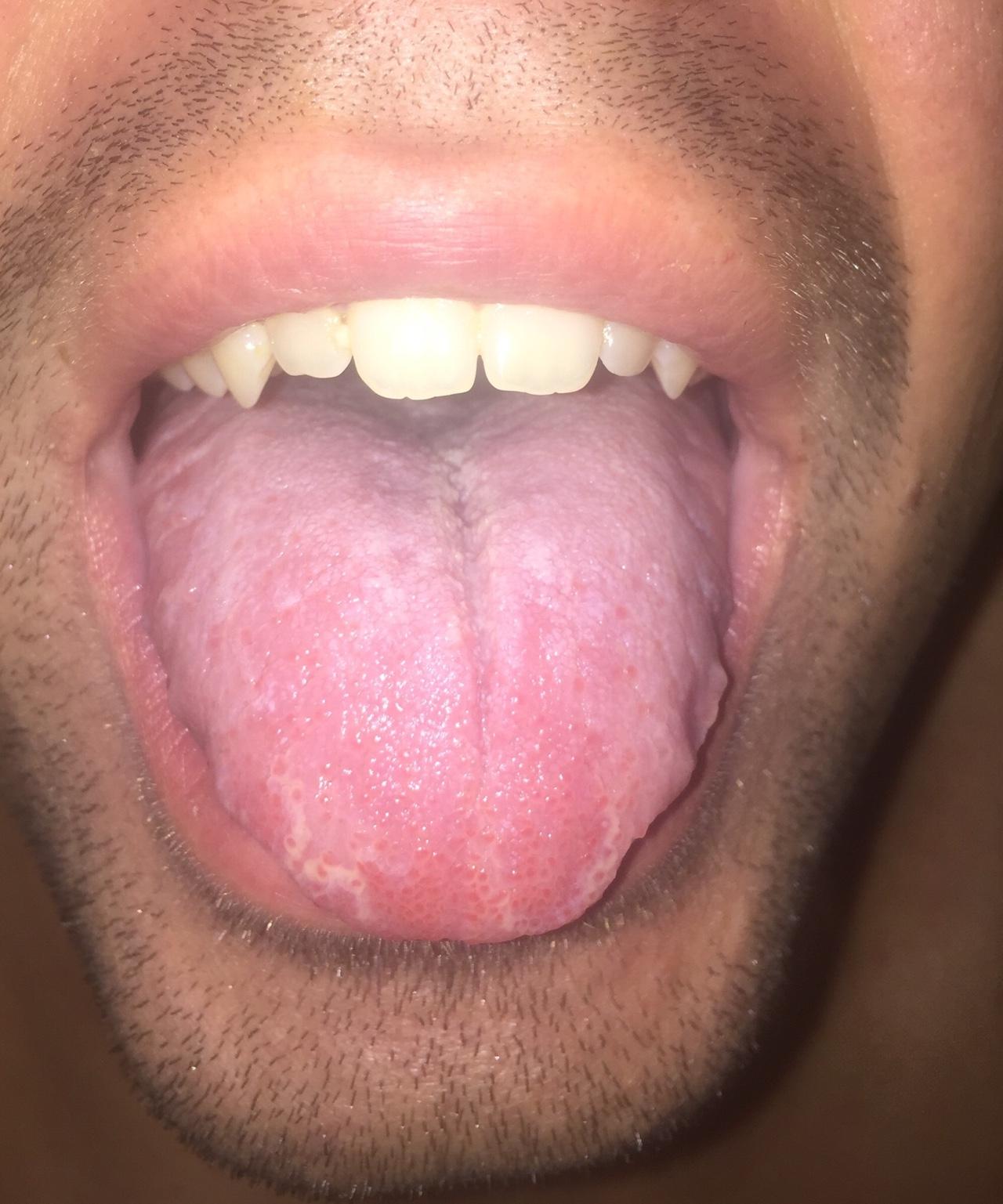 Причины и лечение язвочек на языке у взрослых и детей. как лечить медикаментозными и народными средствами