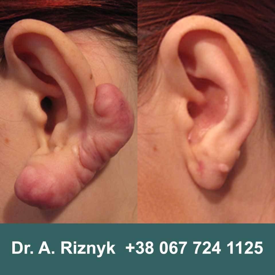 Деформация ушной раковины