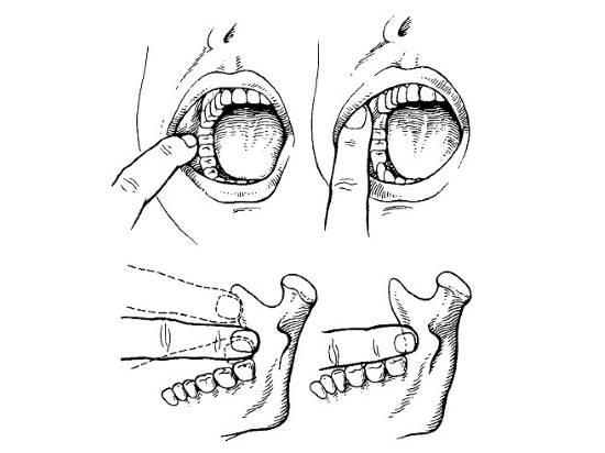 Какие бывают виды анестезий в стоматологии