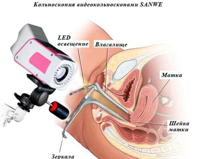 Кольпоскопия во время беременности