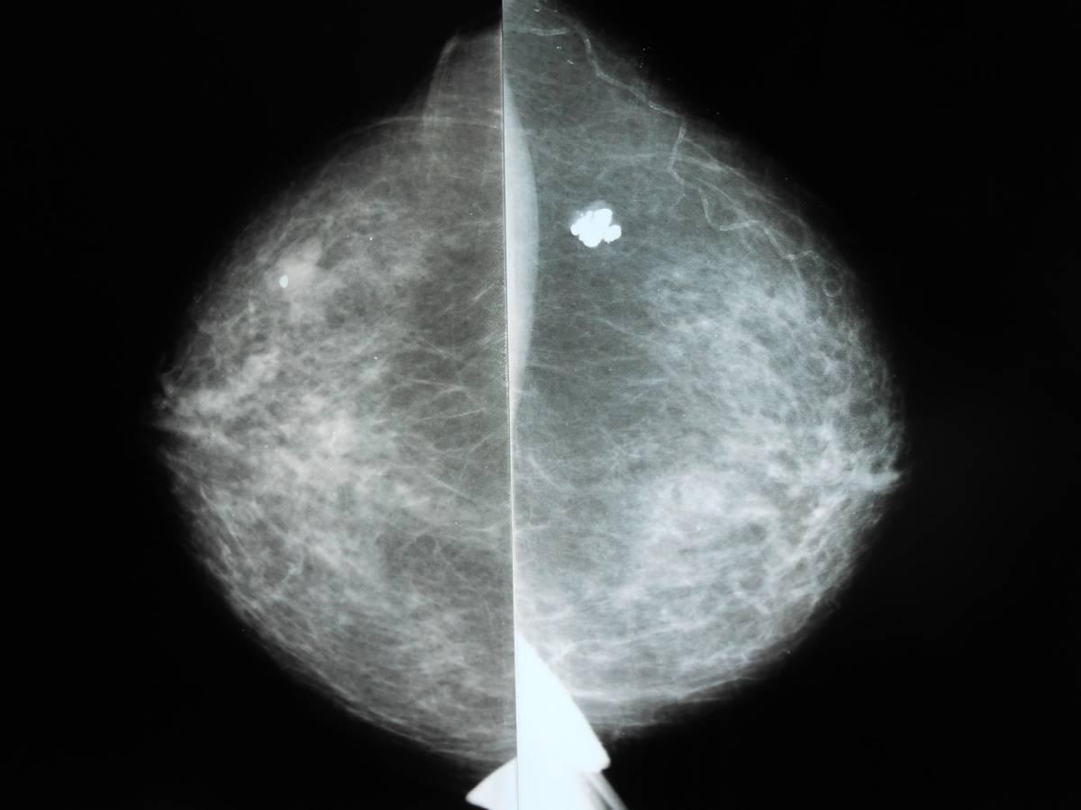 Микрокальцинаты в молочных железах: каков риск онкологии?