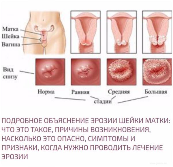 Эрозия шейки матки — проблема каждой второй женщины