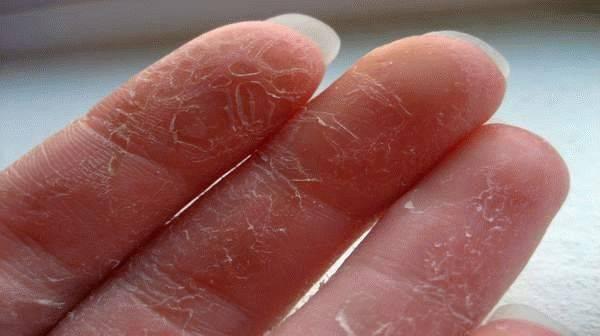 Кожа на руках трескается и чешется: причины зуда, сухой кожи на ладонях