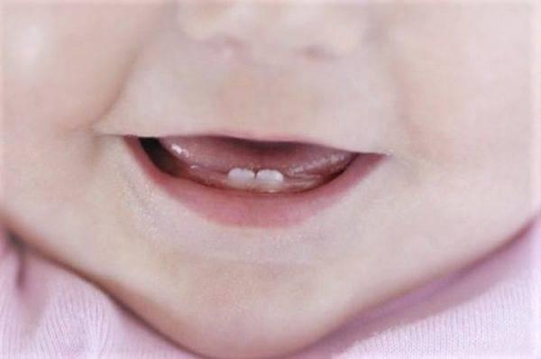 Почему у ребенка синяя десна при прорезывании зубов