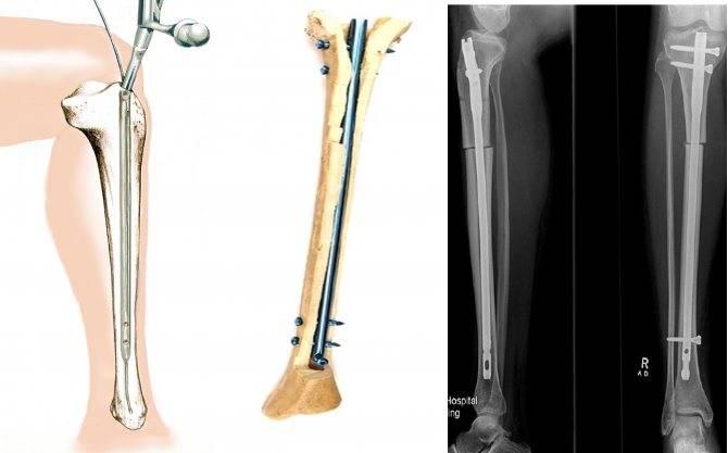 Гайморотомия: когда проводят, виды и ход, последствия, реабилитация