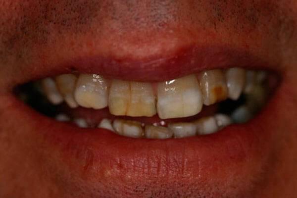 Тетрациклиновые зубы: особенности восстановления