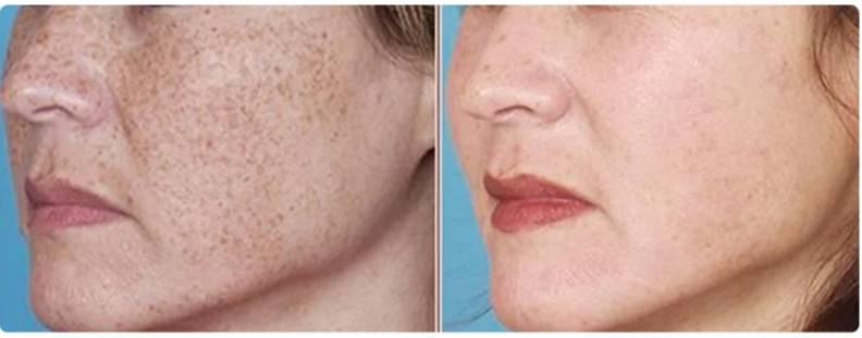 12 средств от пигментных пятен на лице, руках и теле, какие крема лучшие – мази или таблетки