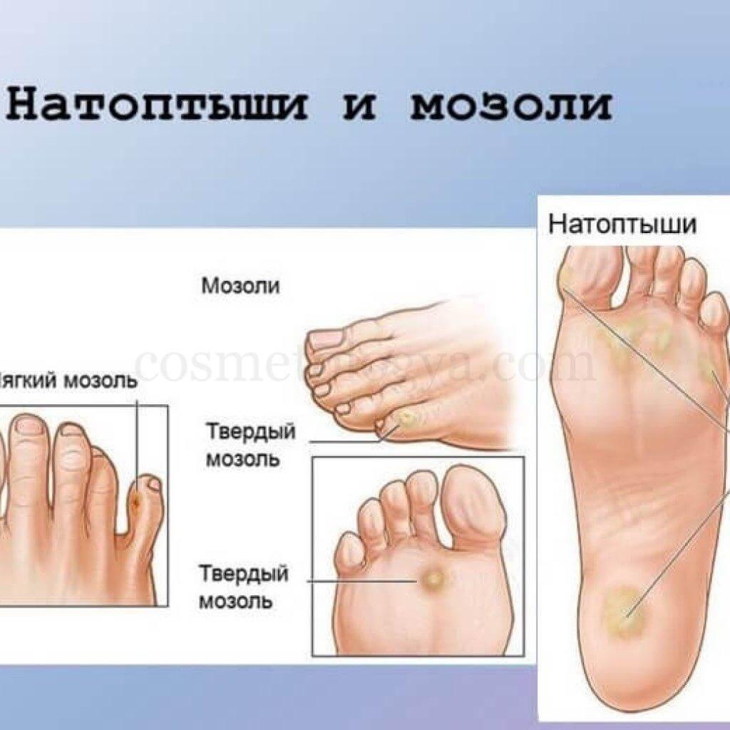 Почему на мизинце ноги появляются сухие и иные мозоли? как от них избавиться?