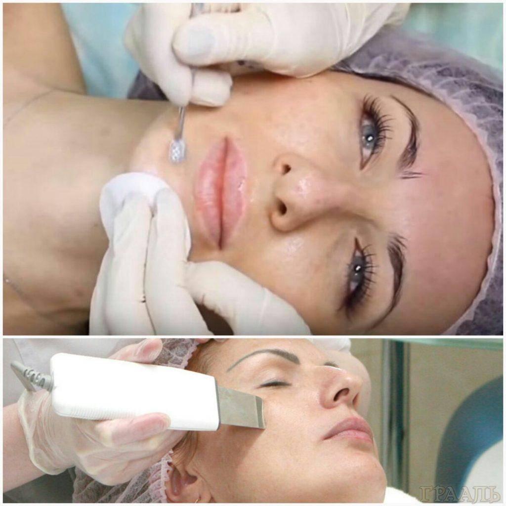 Верный способ иметь здоровую и сияющую кожу — комбинированная чистка лица