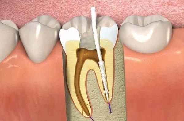 Болит зуб при накусывании после лечения каналов
