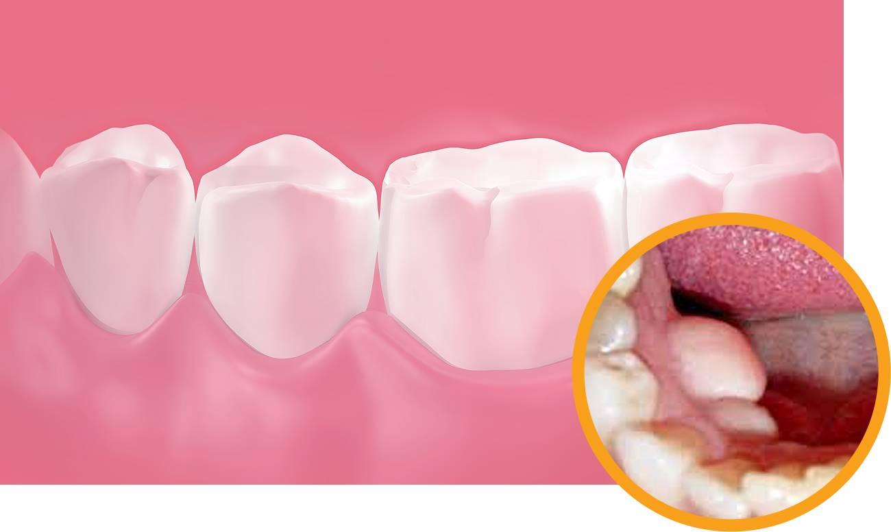 Пришеечный кариес у основания зуба: причины возникновения, лечение, профилактика