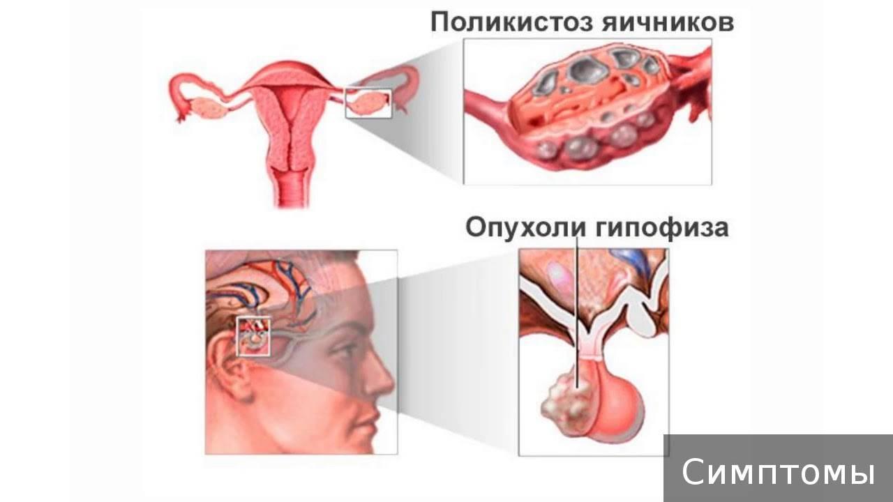 Симптоматика дисфункции яичников