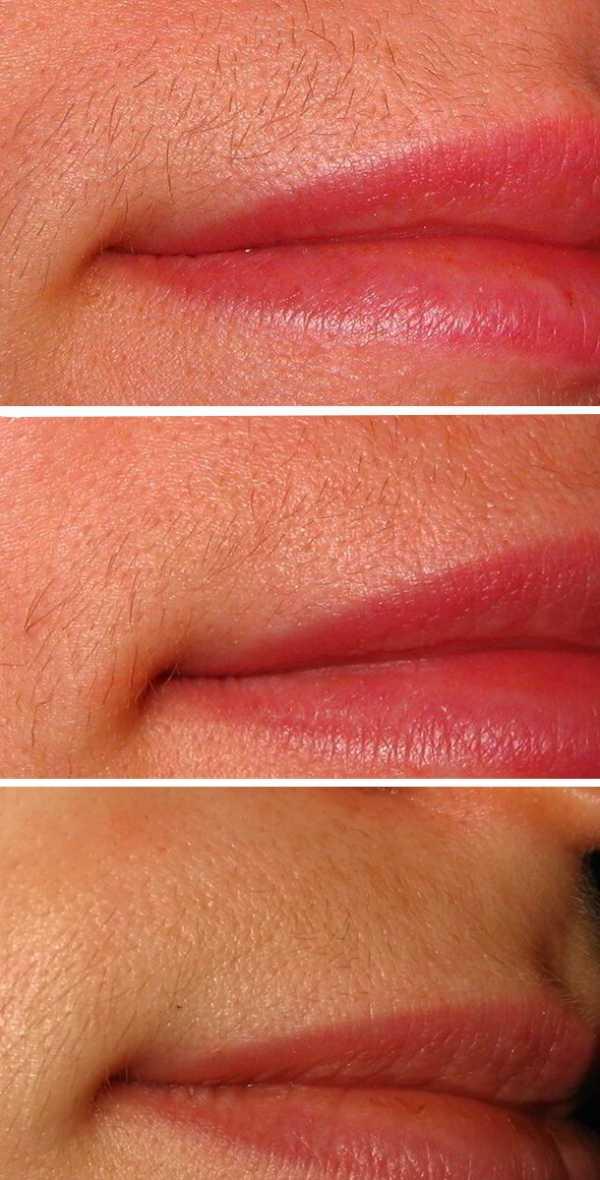 Советы, как избавиться от усов. как избавиться от усиков девушке простыми способами