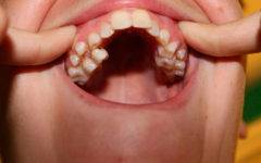Множество лишних зубов или гипердонтия – решение проблемы