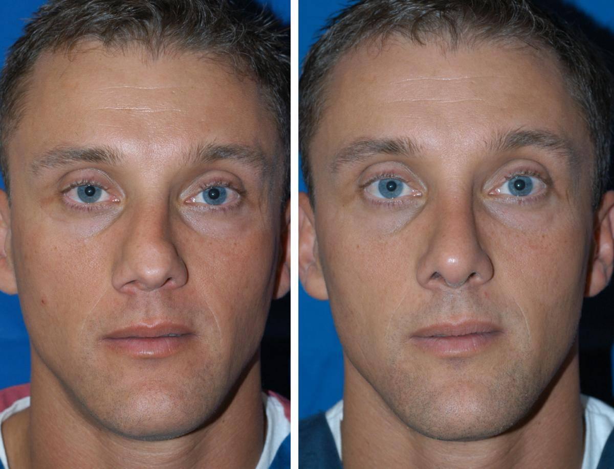 Когда может быть назначена подслизистая резекция перегородки носа?