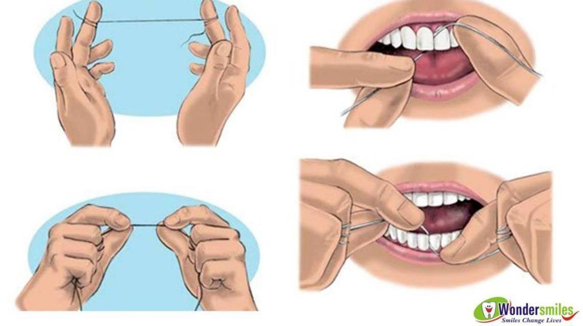 Все нюансы чистки зубов нитью