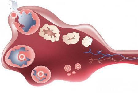 Важно знать: что такое овариальный резерв яичников