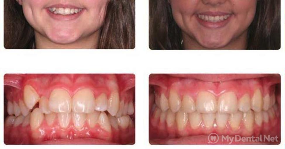Исправление прикуса с помощью ортогнатической хирургии: особенности операции, показания, фото до и после