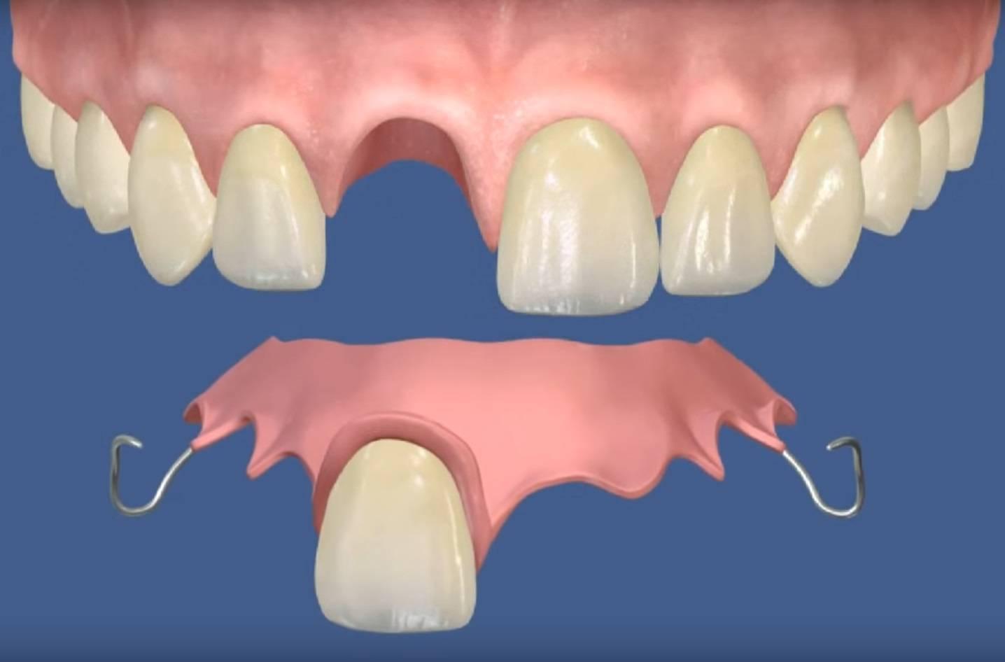 Какие зубные протезы лучше?
