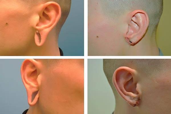 Что такое атрезия слухового прохода: возможно ли устранение патологии и прогнозы по лечению