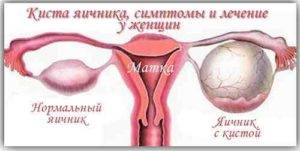 Как лечить кисту яичников при климаксе без операции