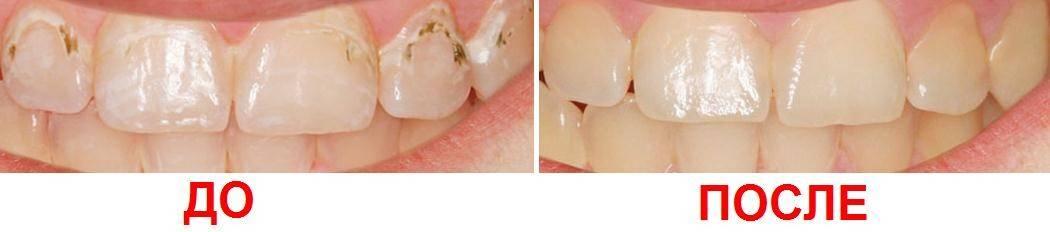 Как лечить кариес на передних зубах? фото до и после лечения