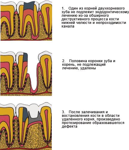 Показания для гемисекции корня зуба, ход операции и возможные осложнения