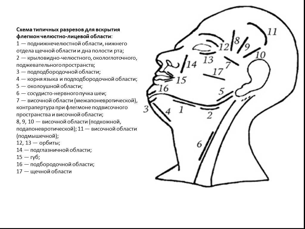 Флегмона челюстно-лицевой области