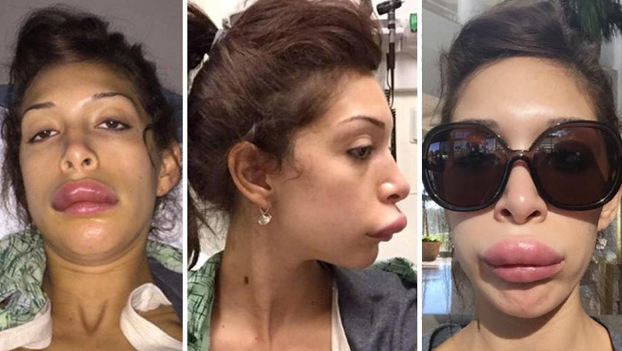 Последствия увеличения губ биополимерными гелями