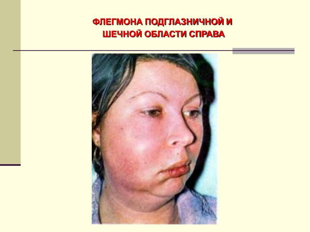 Флегмона дна полости рта: симптоматика и методы лечения