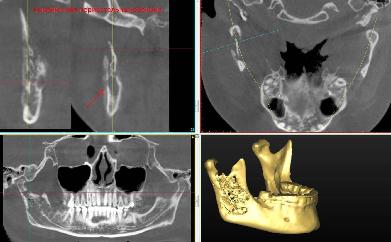 Описание остеонекроза челюсти: причины, симптомы и методы лечения патологии