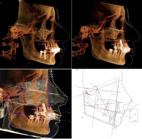Височно-нижнечелюстной сустав и его болезни