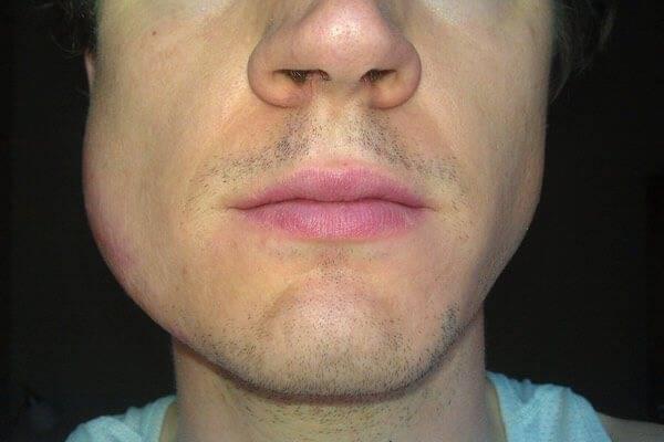 Опухла десна около зуба, что делать в домашних условиях. консультирует стоматолог