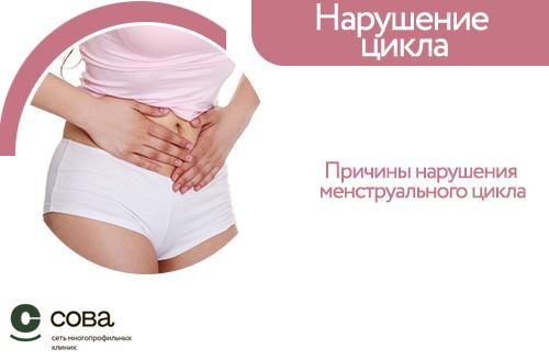 Нарушение менструационного цикла: симптомы, причины и методы лечения