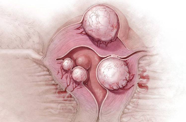 Обзор доступных и эффективных методов лечения миомы матки народными средствами