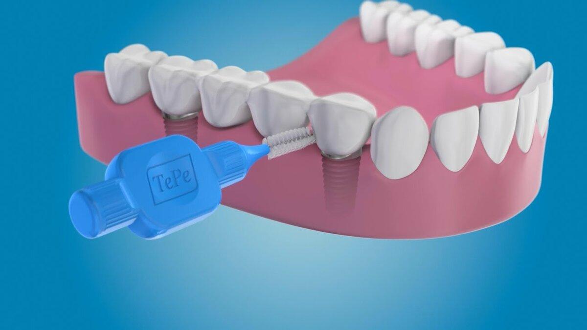 Как правильно ухаживать за имплантами зубов после установки коронки?