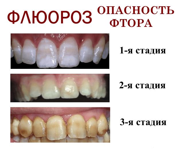 Польза и вред зубной пасты с фтором и тройка лучших средств