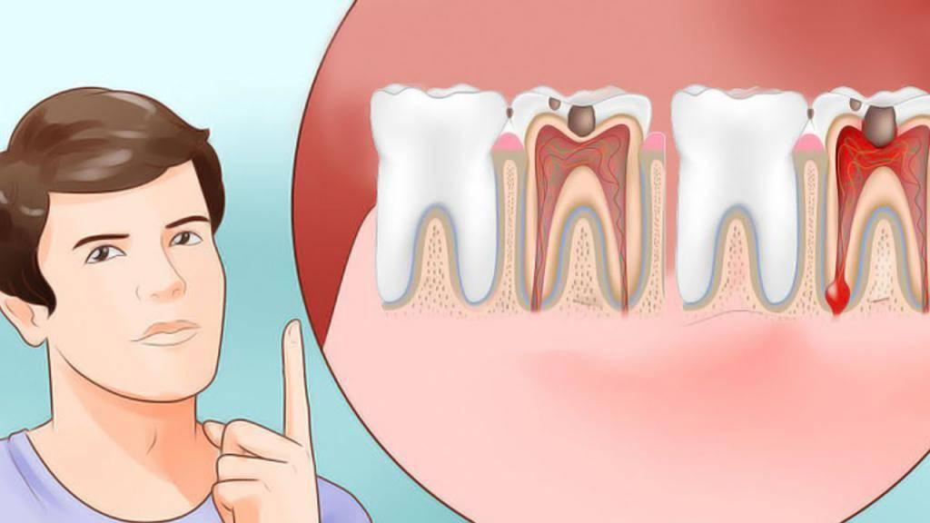 Температура 37 5 и болит зуб