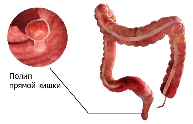 Полипы в кишечнике
