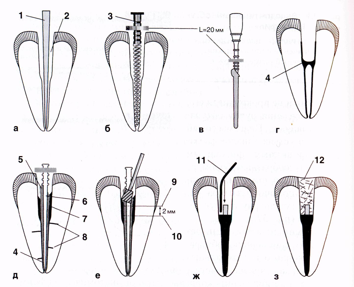 Эндодонтия в стоматологии, что это и когда она применяется?