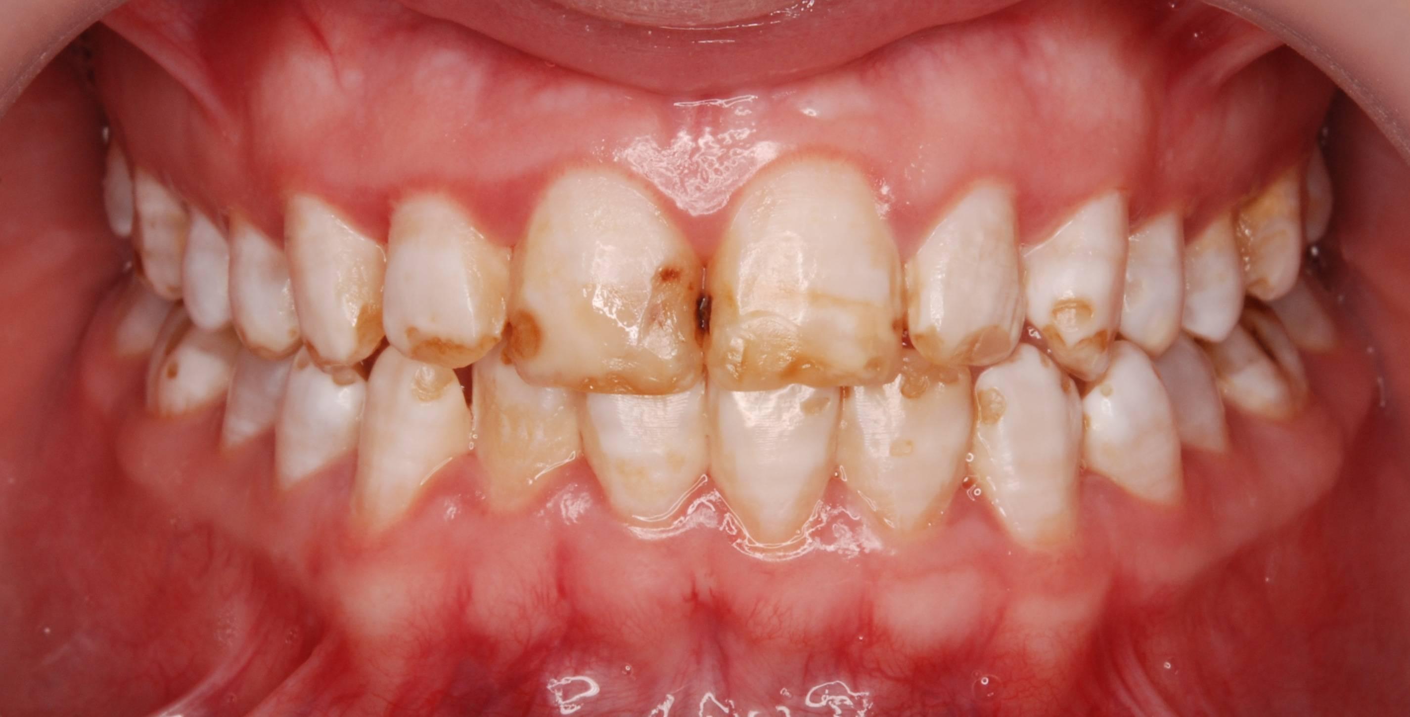 Флюороз зубов – причины, симптомы, методы лечения