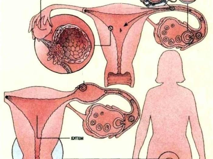 Половая жизнь при кисте яичника