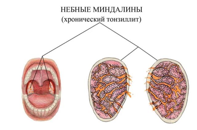 Тонзиллит (адноидит, симптомы, домашнее лечение, фотографии, причины) - новости - 2020