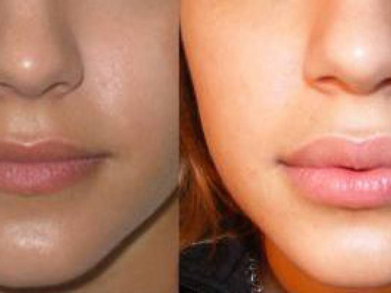 Инъекции ботокса губ: фото до и после, цена процедуры