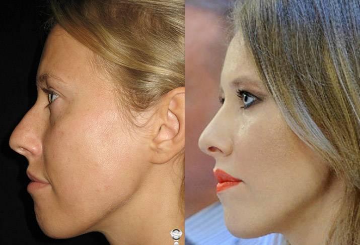 Бородина до и после пластики — фото сравнения +видео и биография